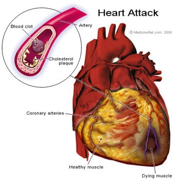 graphic of a heart-attack
